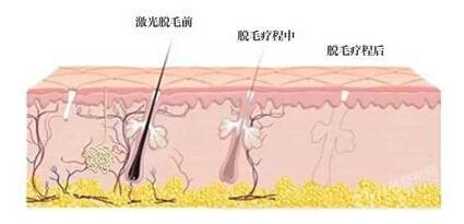 808半导体脱毛仪,广州美丽加,激光脱毛,收缩毛孔,嫩白皮肤,大气氙灯光源,紧致提升,工作原理脱毛过程图