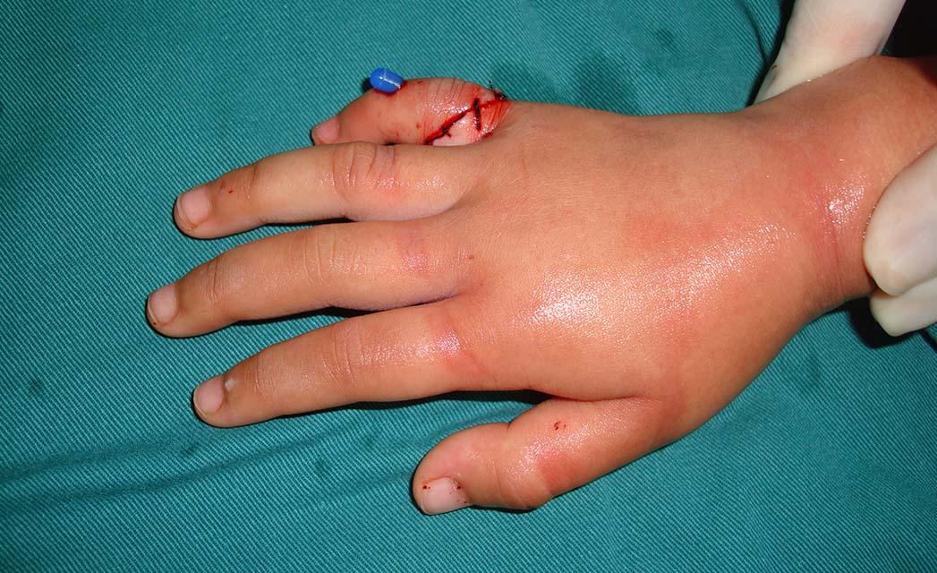 小指再植术