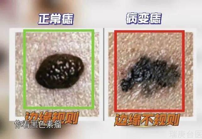 硼中子俘獲治療 | BNCT治療黑色素瘤
